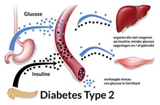 jeuk en diabetes